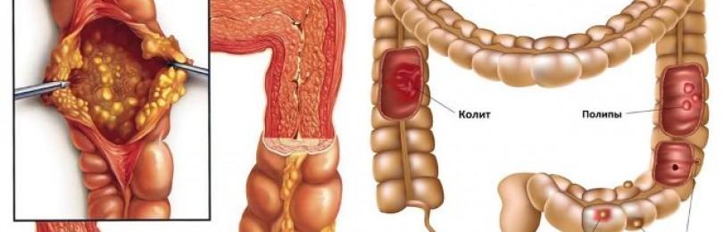 Как лечить колит кишечника