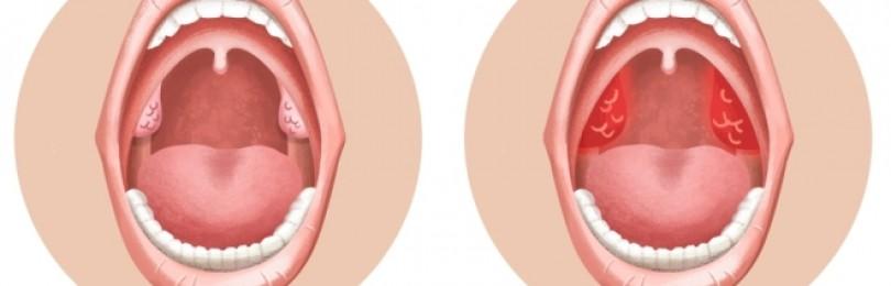 Хронический тонзиллит – лечение у взрослых и детей