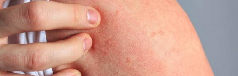 Что такое дерматит