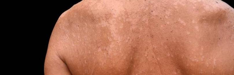 Лишай на коже — лечение