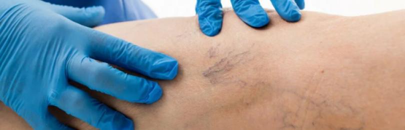 Как лечить варикоз