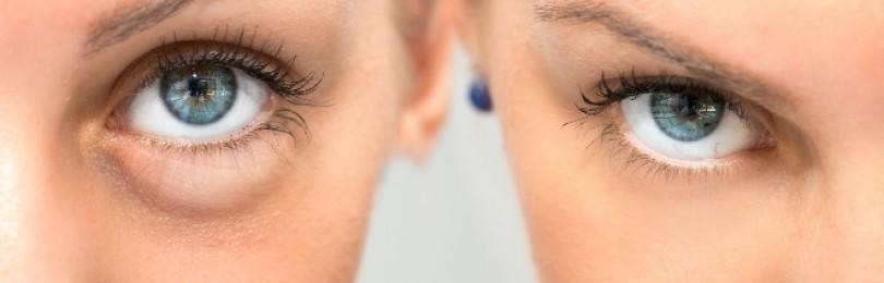 Мешки под глазами – как избавиться