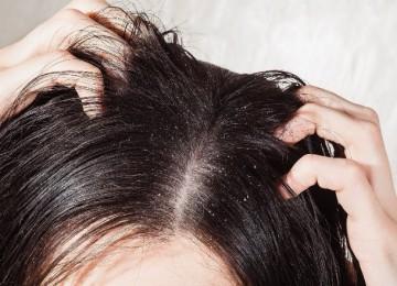 Как избавиться от перхоти на голове