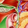 Чем и как лечить холецистит