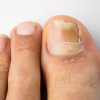 Грибок ногтя – лечение в домашних условиях