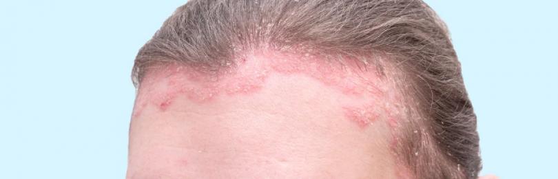 Себорея — лечение