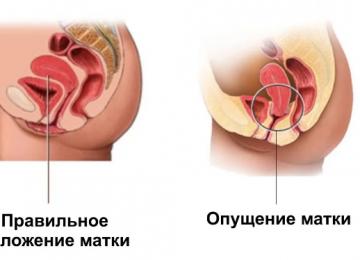 Опущение матки – симптомы и лечение