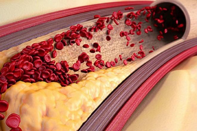 Чистка крови