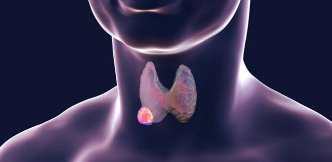 Лечение щитовидной железы у женщин