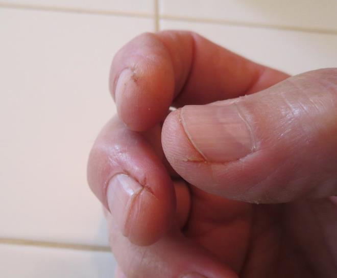 Как лечить трещины на пальцах рук