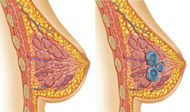 Мастопатия молочной железы